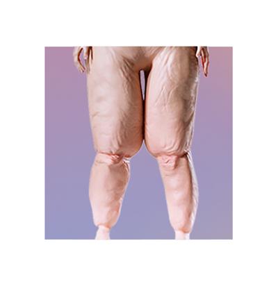 Betroffene mit einem Lipödem bzw. Fettverteilungsstörung zugunsten der Beine. Das Lipödem ist eine schmerzhafte Erkrankung und kann über eine Fettabsaugung nachhaltig behandelt werden.