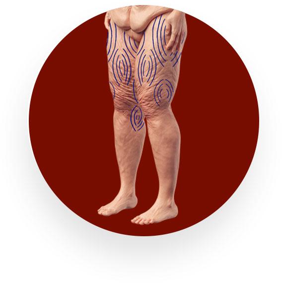 Anzeichnung einer Frau vor einer Fettabsaugung an den Oberschenkeln beidseits