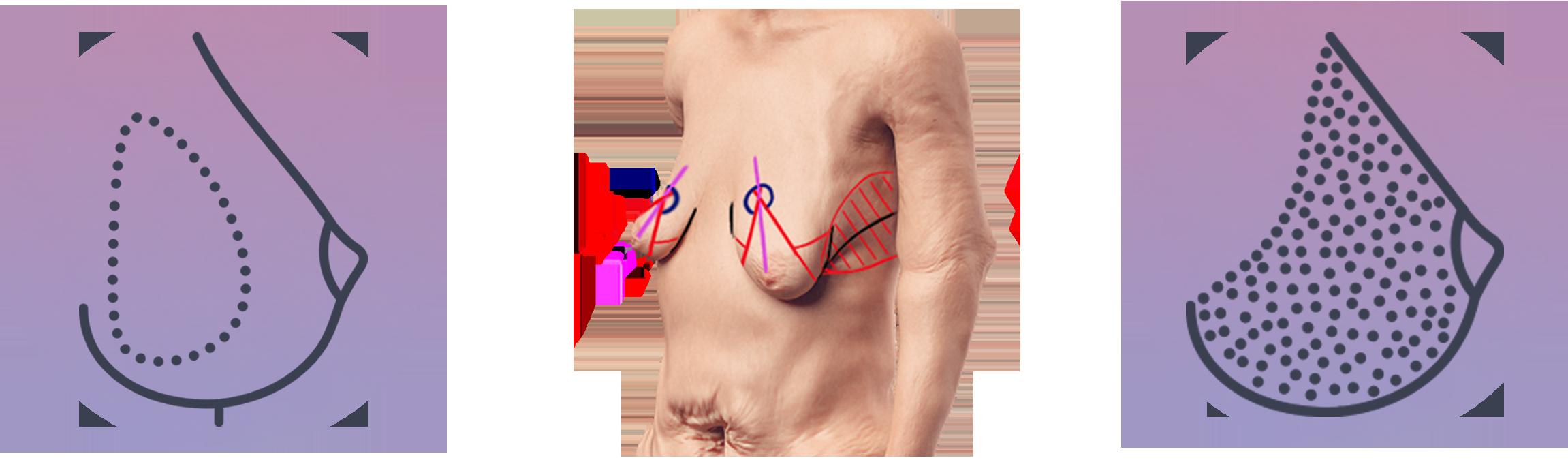 Brustvergrößerung durch Eigengewebe und Implantate