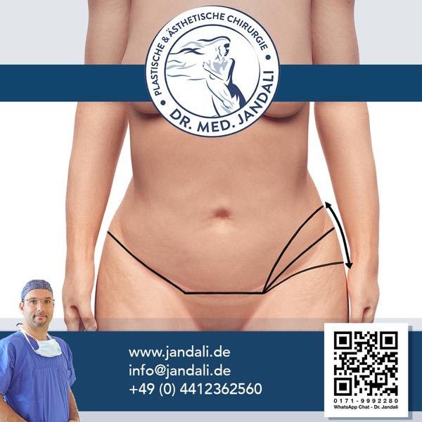 Abdominoplastik