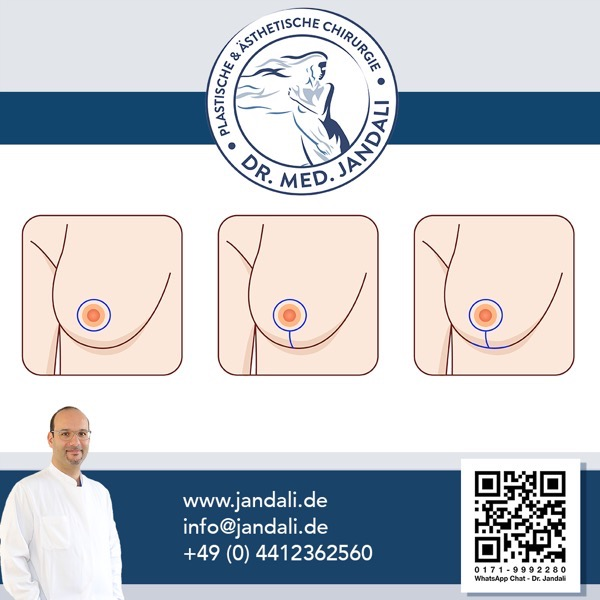 Bruststraffung methoden